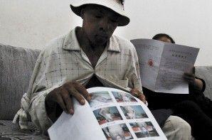 张昌友向记者展示自己烧伤时的照片 都市时报 贾丹