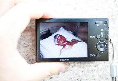 家属出示杨瀚被打受伤的照片。见习记者 丁明 摄
